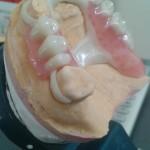 Proteza Biocetal