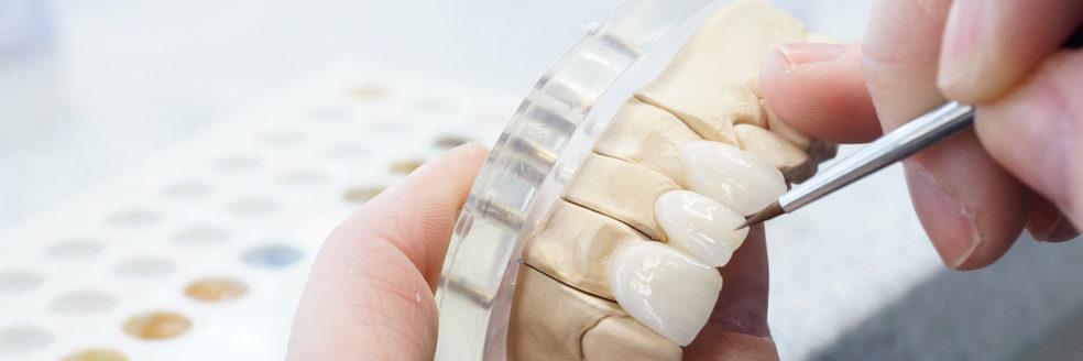 Tehnician dentar